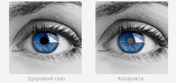 зрачок при катаракте